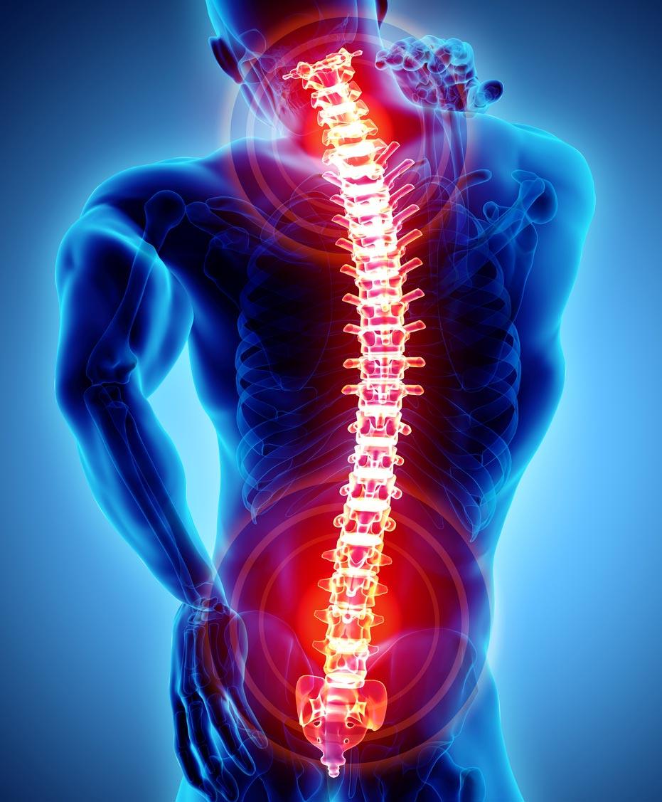 common injuries, back pain, neck pain, whiplash, personal injury, personal injury lawyer, personal injury attorney, personal injury attorney fresno, personal injury lawyer fresno